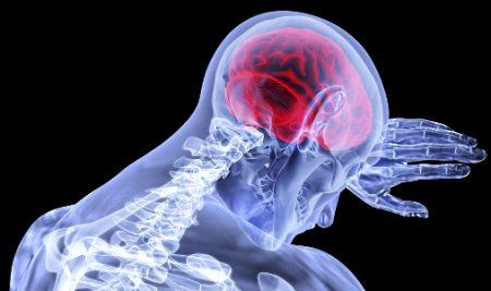 AVC – atac vascular cerebral